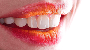 DDC_Dental_Clinic_Stomatologia_Dentysta_Lodz_[smile]