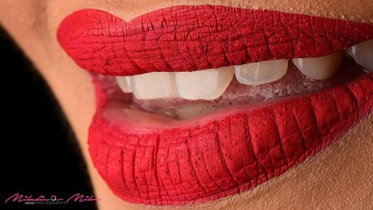 Design_Dental_Clinic_Stomatolog_Dentysta_Klinika_Lodz_dental photography - shoot like a pro246_by_Milos_Miladinov_1
