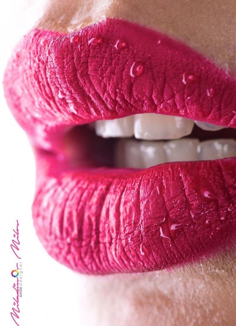 Design_Dental_Clinic_Stomatolog_Dentysta_Klinika_Lodz_dental photography - shoot like a pro257_by_Milos_Miladinov_1