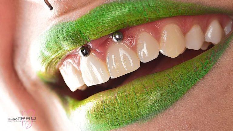 Design_Dental_Clinic_Stomatolog_Dentysta_Klinika_Lodz_dental photography - shoot like a pro270_by_Milos_Miladinov
