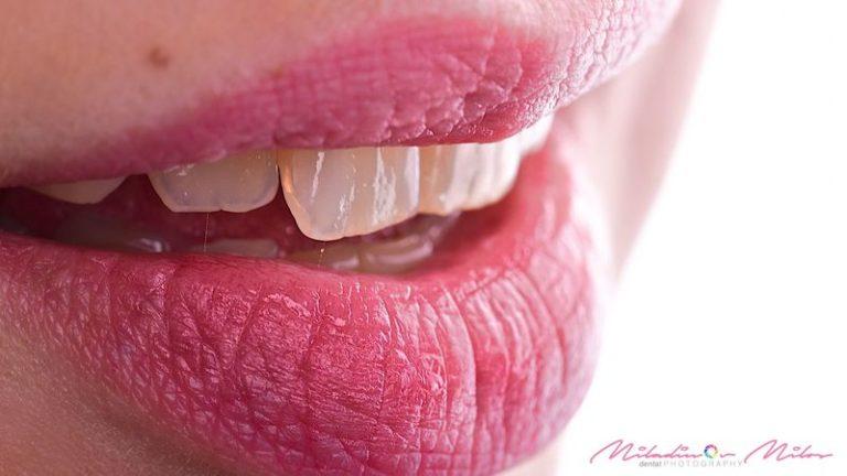 Design_Dental_Clinic_Stomatolog_Dentysta_Klinika_Lodz_dental photography - shoot like a pro428_by_Milos_Miladinov_1