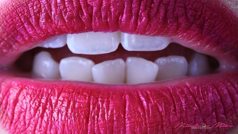 Design_Dental_Clinic_Stomatolog_Dentysta_Klinika_Lodz_dental photography - shoot like a pro46_by_Milos_Miladinov