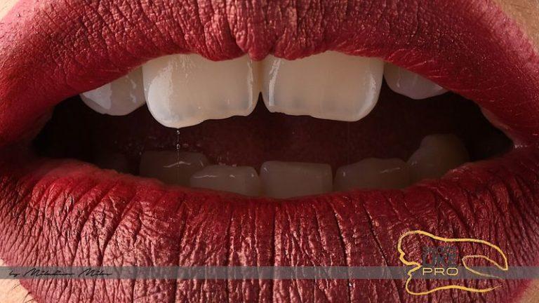 Design_Dental_Clinic_Stomatolog_Dentysta_Klinika_Lodz_dental photography - shoot like a pro526_by_Milos_Miladinov_1